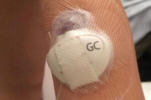 20-de-mureseni,-bolnavi-de-diabet,-primesc-in-februarie-senzori-de-glicemie