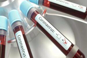 coronavirus-romania:-187-de-cazuri-noi-de-coronavirus-in-ultimele-24-de-ore