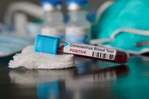 391-de-noi-cazuri-de-coronavirus-si-19-decese
