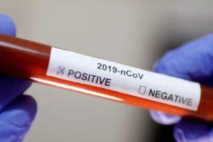 22-de-noi-cazuri-de-coronavirus-in-mures,-in-ultimele-24-de-ore