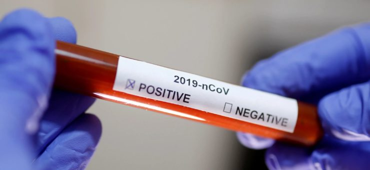 203-cazuri-noi-de-persoane-infectate-cu-virusul-sars-cov-2,-in-mures